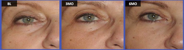 Facial Rejuvenation Plastic Surgery And Dermatology Associates Fairfax Va Dermatologist