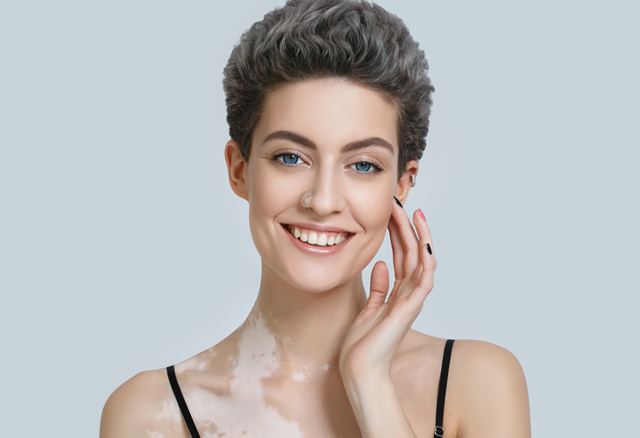 Vitiligo Treatment Plastic Surgery And Dermatology Associates Fairfax Va Dermatologist